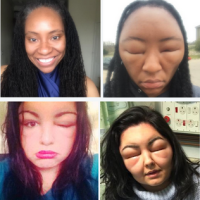 Horrid hair dye Arllergy: Fitness blogger's face swells after horrifying allergic reaction Hair dye reaction. Teenager almost dies twice