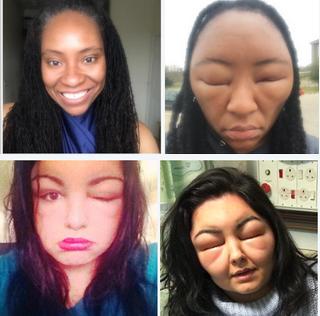 Horrid hair dye Arllergy: Fitness blogger's face swells after horrifying allergic reaction Hair dye reaction. Teenager almost dies twice