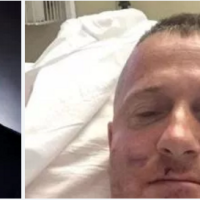 Richard Ojeda, WV attacked: Political violence West Virginia State Senate candidate brutally beaten at cookout two days before primary