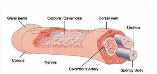 Peyronie's disease6.png