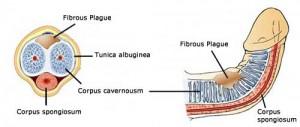plaque-peyronies4