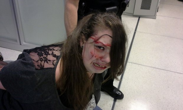 Disabled Cancer patient: Hannah Cohen, 19, bloodied and bruised by over zealous Memphis airport security and locked up in jail for a night