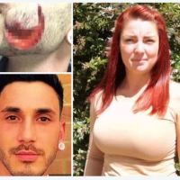 Graphic - 60 stitches needed for repairs: Vampire lady bites a big chunk out of a man's cheek causing horrific injuries of clubber who had part of his cheek bitten, off for calling woman 'fit as f***'