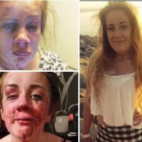Is teen mom Tia Jade Edwards going to get justice second time around as  she posts images of second brutal attack in a year - Will the Welsh authorities prosecute the culprits this time around?