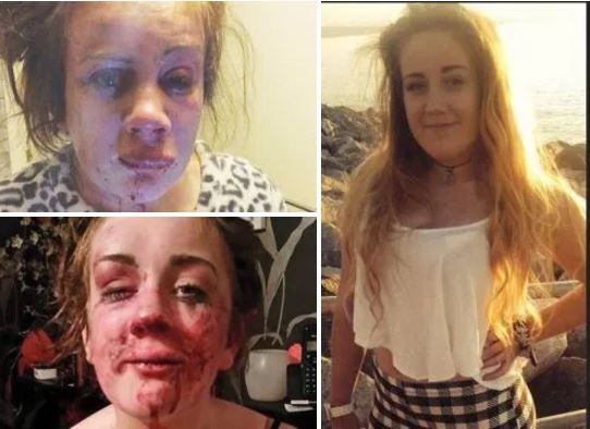 Is teen mom Tia Jade Edwards going to get justice second time around as  she posts images of second brutal attack in a year – Will the Welsh authorities prosecute the culprits this time around?