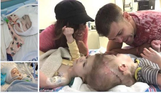 Epic surgery successful!!: Conjoined twin, Anias and Jadon McDonald, joined at the head successfully separated in surgery -surgeon almost stopped half-way through marathon op