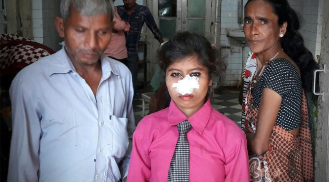 For the want of luxury dowry, husband bit off wife's nose – living her disfigured in savage attack after she turned down his dowry demands